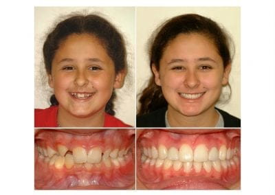 before and after liza