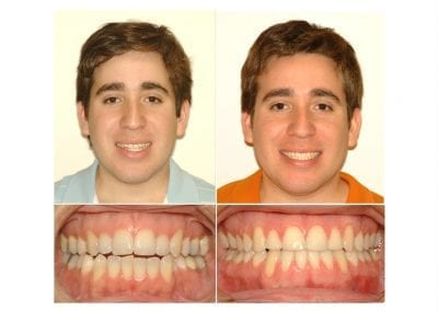 fernando before and after