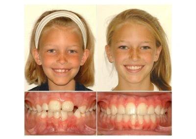 isabel before and after