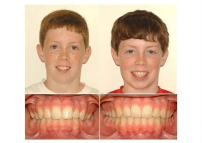 Kyle before and after 3