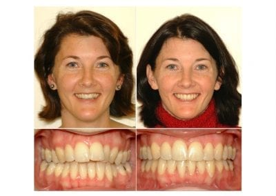 Before & After - CopeOrtho