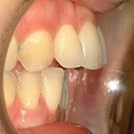 excess overjet before treatment