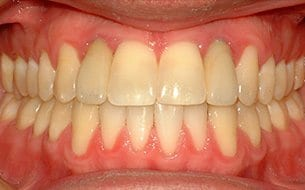 missing teeth treatment after treatment