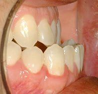 negative overjet before treatment