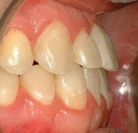 negative overjet after treatment