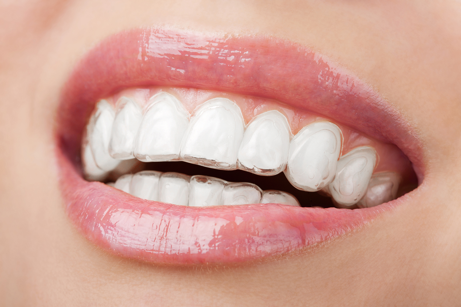 invisalign treatment options - closeup image