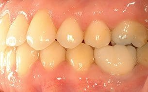 supererupted teeth treatment after treatment
